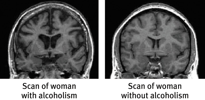 Brain scan of alcohol damage