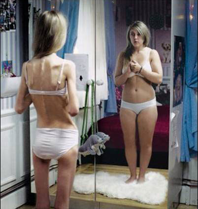 an illustration of the distorted body image typifying this psychological disorder